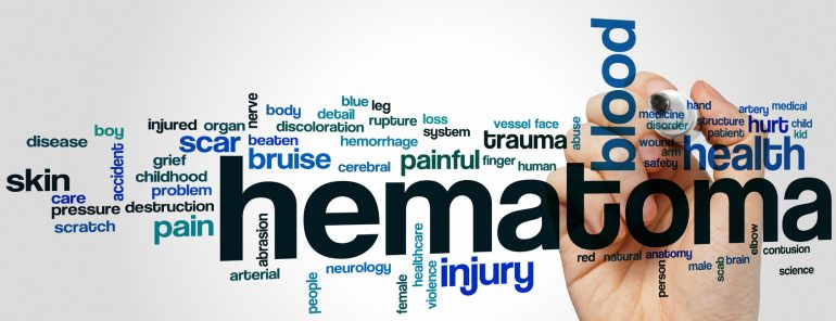 Hematoma word cloud concept with blood injury related tags